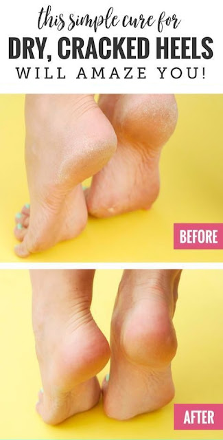 How To Get Rid Of Your Painful Athlete'S Foot – Home Remedies That Work 100%