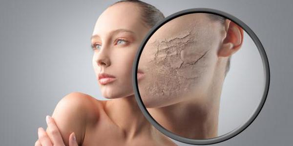 Hampir setiap perempuan tentu ingin kulit yang lembut Penyebab Utama Kulit Wajah Mengelupas dan Cara Mengatasinya