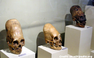 Elongated Skulls from Paracas, Peru