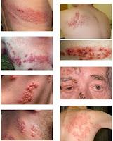 Zona Hastalığının Görüntüsü Resimleri
