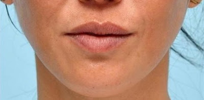 dimpled chin after treatment with botox