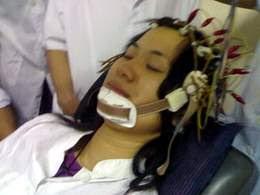 Điều trị đau đầu căn nguyên mạch máu thần kinh