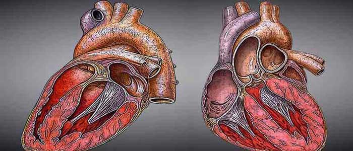 Cara Mencegah Penyakit dan Serangan Jantung
