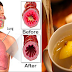 Remove Mucus and Phlegm Naturally in Your Chest and Throat Fast