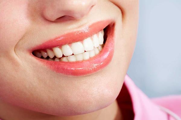 افضل طريقة لتبييض الأسنان الصفراء في البيت