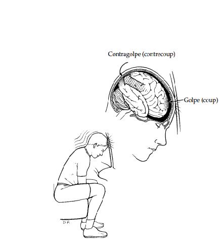 Neuropsicología: LESIONES CEREBRALES TEMPRANAS