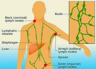 Tanda - tanda kanser lymphoma