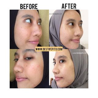 Perbedaan kulit wajah setelah pemakaian seminggu