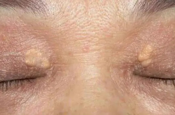 Xanthoma eyelids