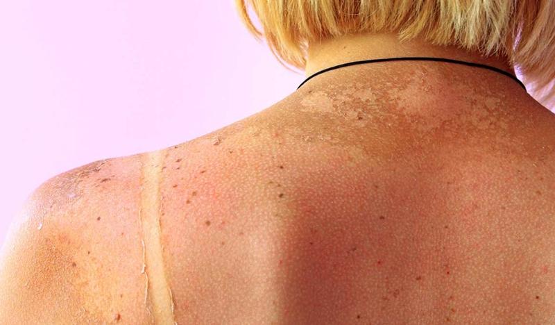 Güneş cildinizde lekeler oluşturmasın