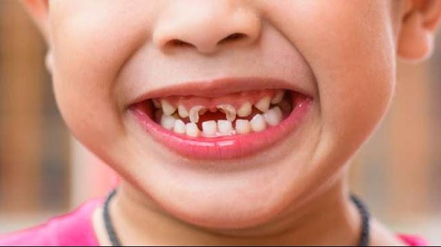 Penyebab dan Cara Mencegah Gigi Berlubang Pada Anak 2 Tahun