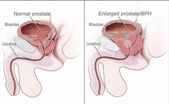 Obat Prostat Di Apotik QNC JELLY GAMAT