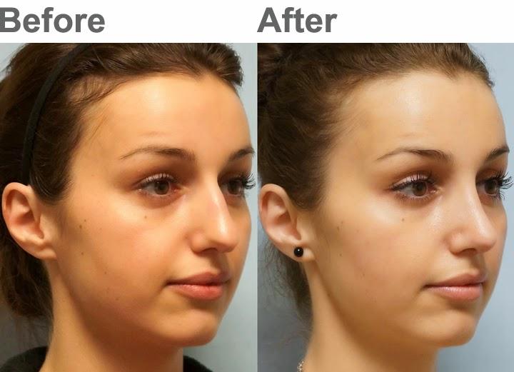 Facial Plastic Surgery: January 2014