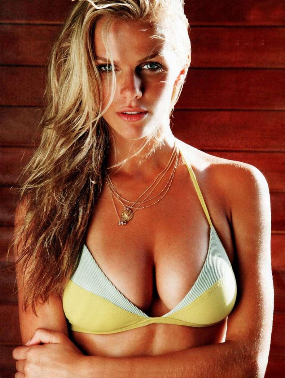 Breast Augmentation Palm Beach, Cosmetic Surgeons, Breast -9431