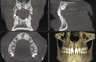 Dental-CAD Cam