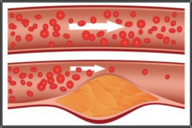 9 Obat Tradisional Kolesterol Alami Paling Ampuh
