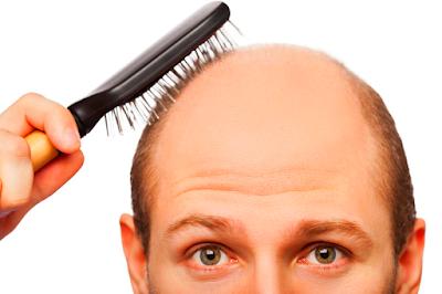 Cara menumbuhkan rambut botak bagian depan