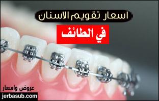 أسعار تقويم الاسنان في الطائف