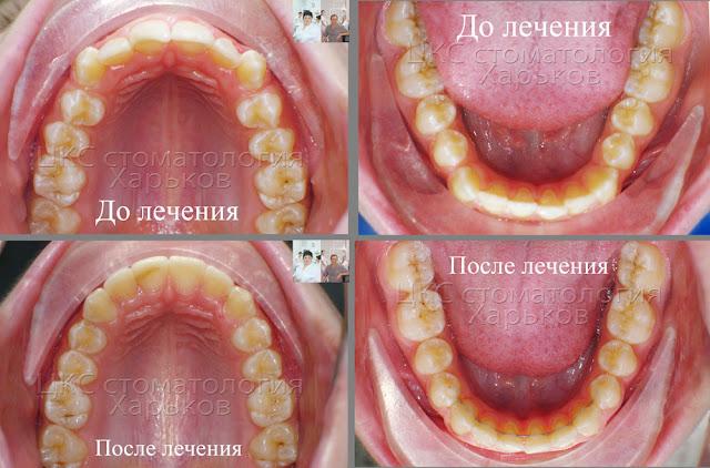 Форма зубного ряда до и после лечения брекетами