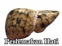 obat tradisional untuk perlemakan hati/fatty liver