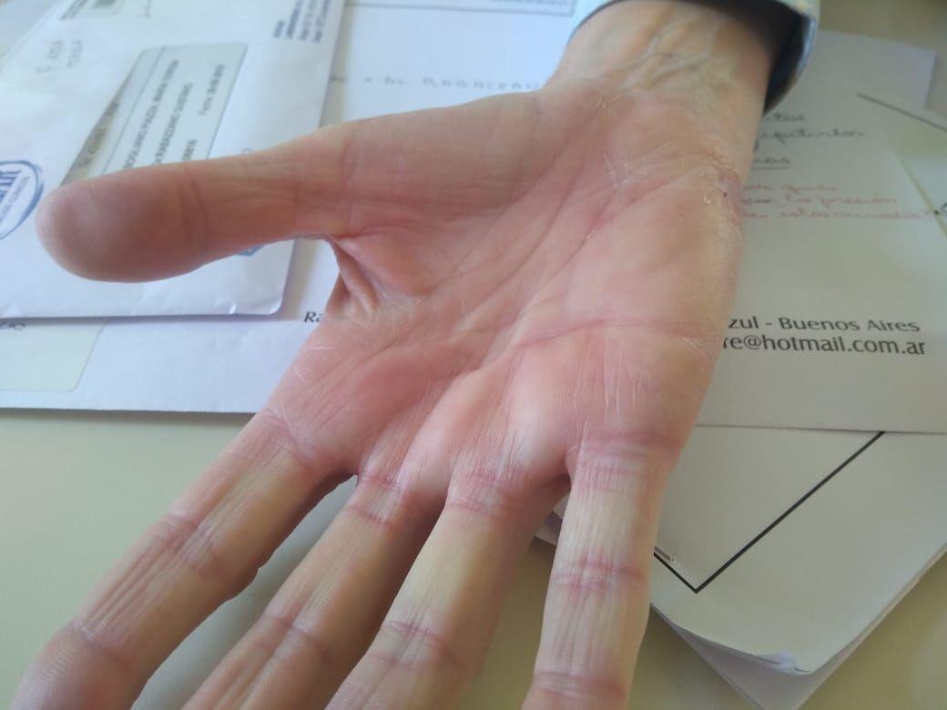 hidradenitis ecrina diabetes emedicina