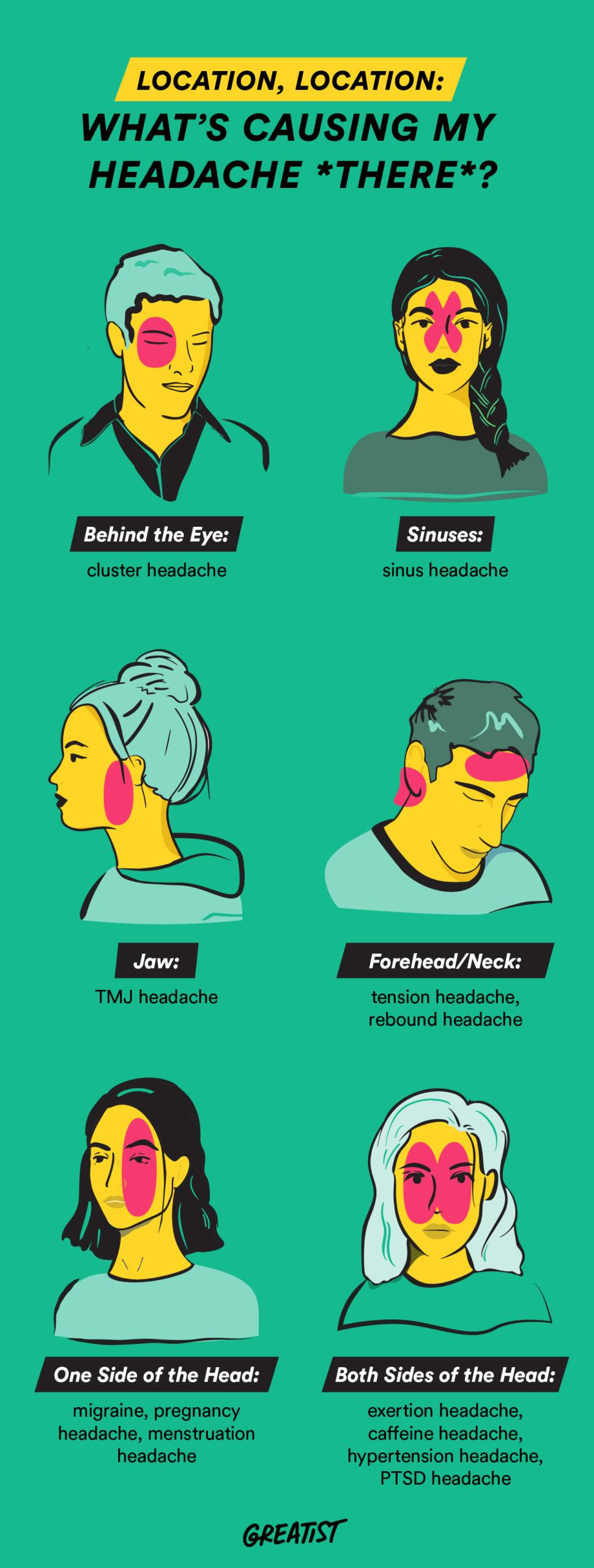 Location, Location: What's Causing My Headache *There*? #infographic #Headache #infographics #Infographic #Headache location #Headache treatment