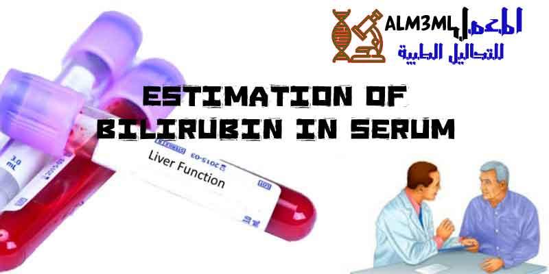 Estimation of Bilirubin in serum