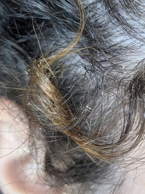 gel redutor de volume da nazca da caspa faz o fio soltar cisquinhos