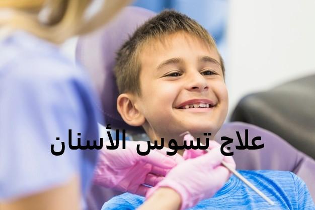 علاج تسوس الاسنان عند الاطفال في المنزل
