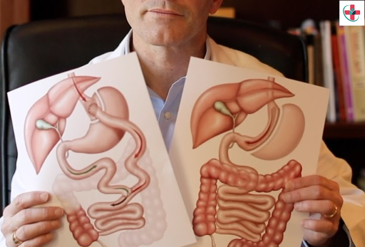 Gastric Sleeve or Gastric Bypass