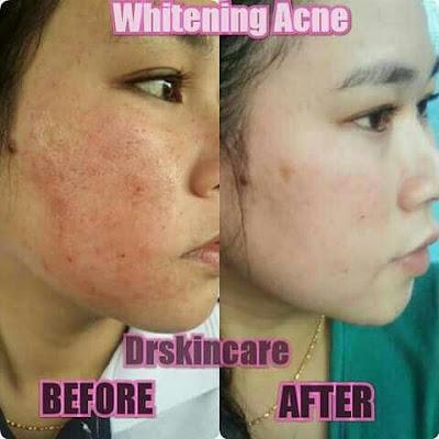 Paket Drw Skincare untuk jerawat