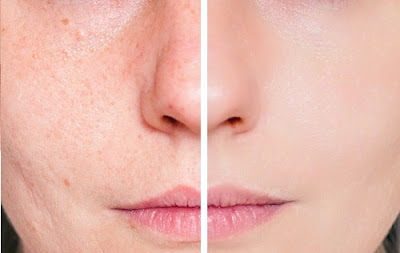 cicatrice d'acné avant-aprés