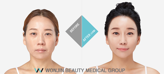 [FAQ] Korea Face Lift at Wonjin Plastic Surgery Clinic Seoul Korea