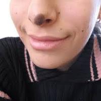 5 Solusi Memudarkan Tompel Hitam Pada Wajah yang Membandel