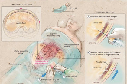 Paracentesis Physical Care For Mesothelioma, Used To Take Away Excess Fluid From The Abdominal Cavity