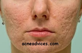 Acne scars how are they formed