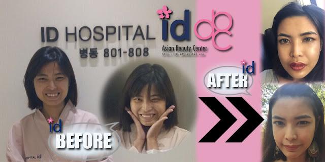 รีวิวศัลยกรรมเกาหลี ตั้งแต่มาเกาหลีถึงกลับเมืองไทย