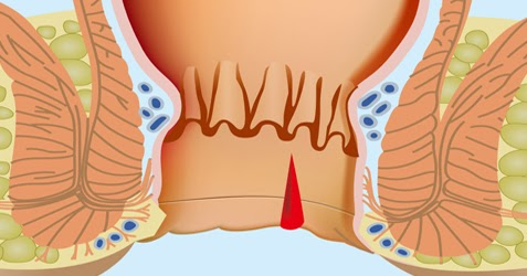 Get A Health Checkup By A Best Piles Treatment in Jaipur