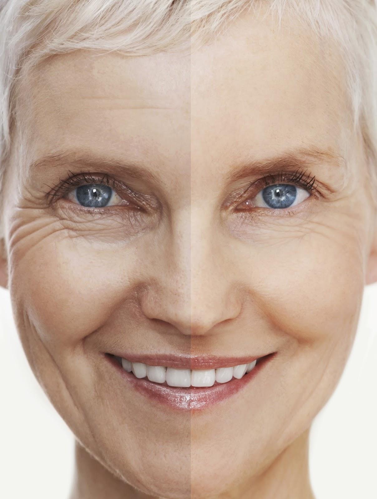 Como reducir los hinchazones ante los ojos