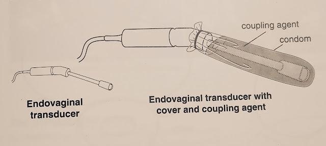 Endovaginal ultrasound एंडोवैजिनल अल्ट्रासाउंड