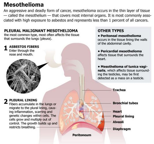 Pleural Mesothelioma Happens In The Pleura The Lungs Covering Peritoneal Mesothelioma Happens In The Peritoneum The Stomach Dejection Divider