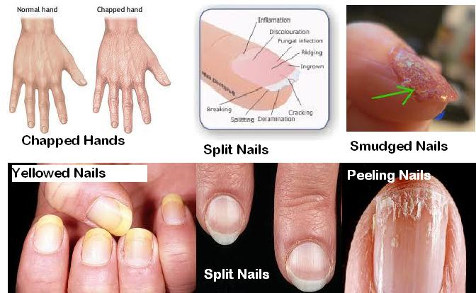 The Nails And Their Shape Indicate More Serious Health Problems If However There Is Nothing Wrong With Your But You Think That Are Not