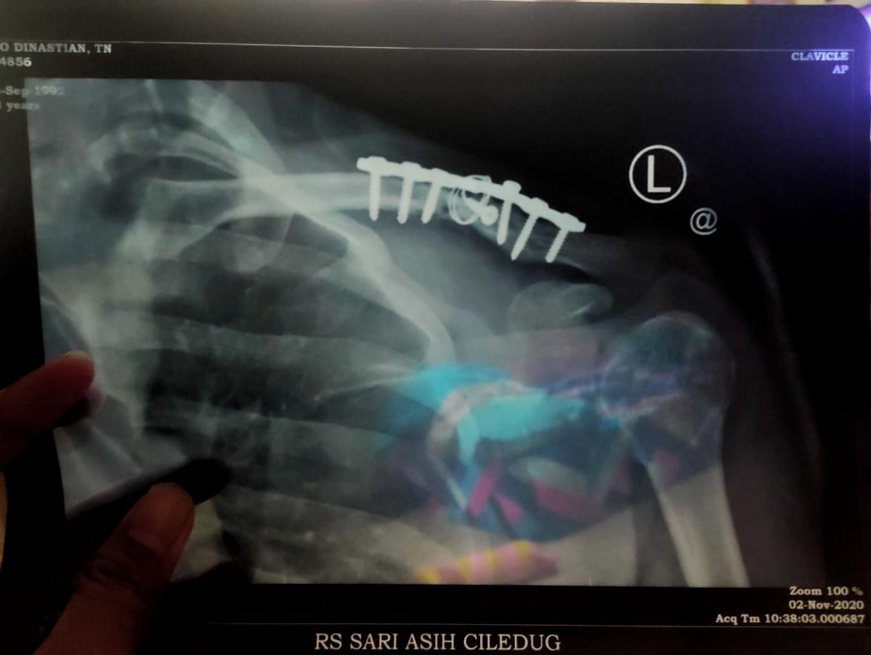 Hasil Rontgen Patah Tulang Clavicula pasca operasi