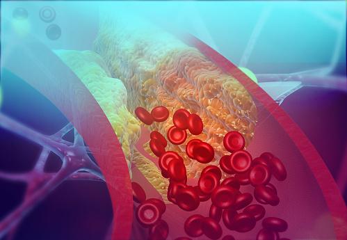 penyebab kolestrol dan 5 cara mengatasi kesemutan akibat kolesterol