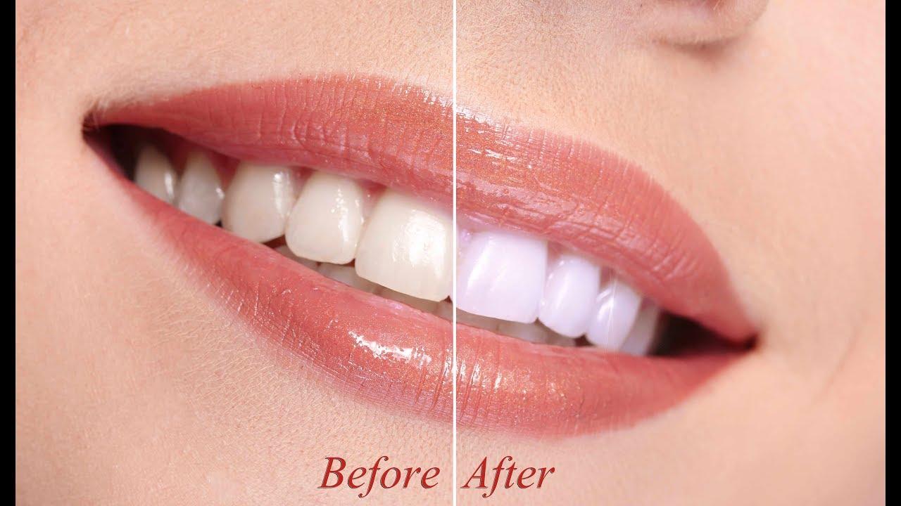 تبييض الاسنان في اقل من دقيقه