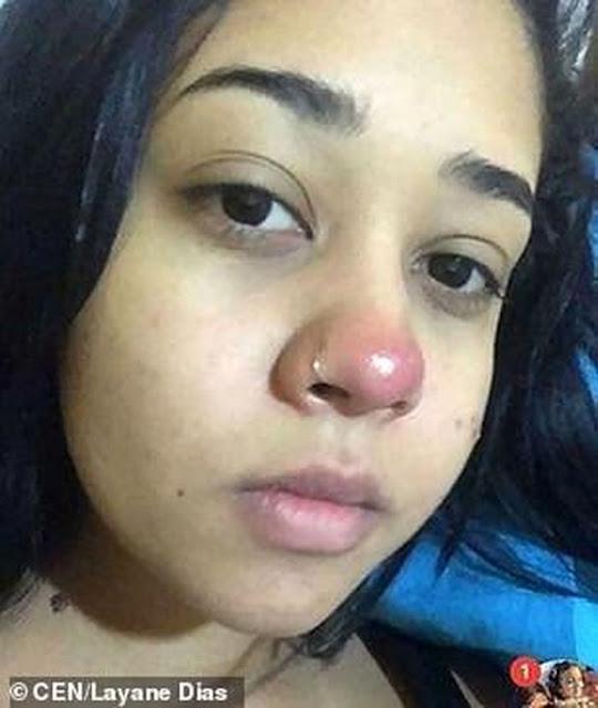 Layane Dias Mendadak Lumpuh Usai Menindik Hidung, Peringatan Keras Bagi Remaja