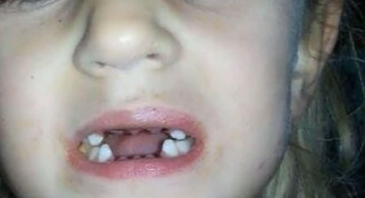 Portal Curió  Esta mãe filmava secretamente o dentista de sua filha ... 16771e42924