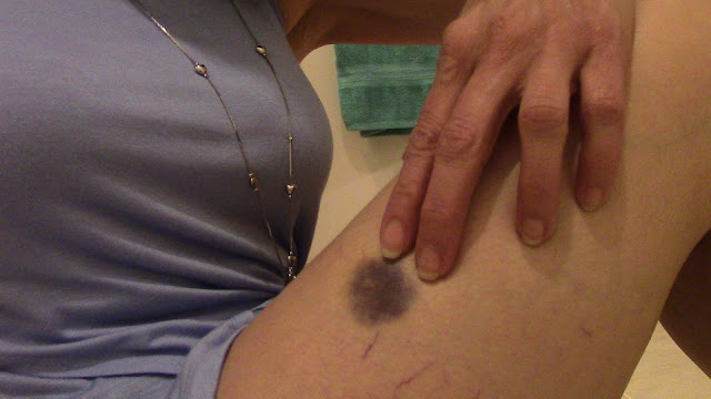 dark purple bruise