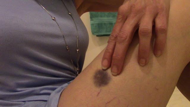 dark purple bruise