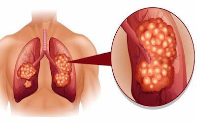 Ung thư phổi đang ngày càng trẻ hóa hãy phòng tránh trước khi quá muộn